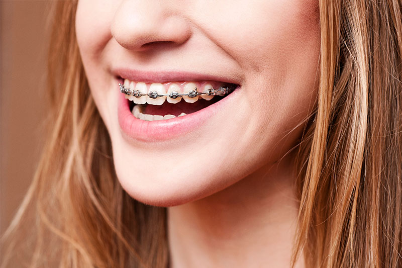 Redondo Beach Orthodontics
