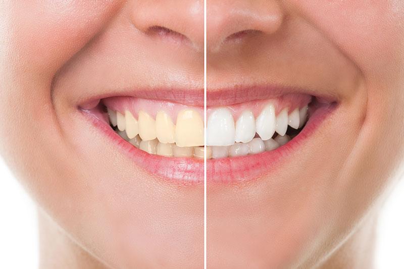 Special Dental Offer Redondo Beach